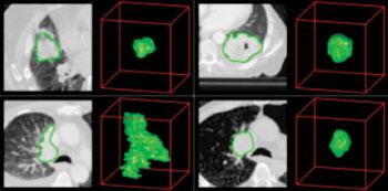 Imagen: Extracción de la información radiómica de los exámenes por TC de pacientes con cáncer de pulmón. Las imágenes de la TC con contornos tumorales a la izquierda y visualizaciones tridimensionales a la derecha (Fotografía cortesía del Centro Médico de la Universidad de Maastricht).