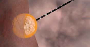 Imagen: La antena del sistema de ablación, Emprint, insertada en un tumor directamente a través de la piel (Fotografía cortesía de Covidien).