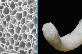 Imagen: La estructura y apariencia del injerto nervioso Avance (Fotografía cortesía de Axogen).