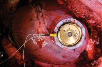 Imagen: Se muestra el dispositivo cosechador de energía suturado sobre el miocardio (Fotografía cortesía de Adrian Zurbuchen/Universidad de Berna).