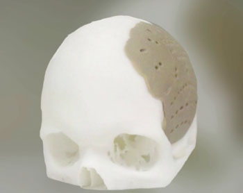 Imagen: Un implante OPSFD diseñado para reconstruir parte del cráneo (Fotografía cortesía de OPM).