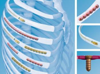 Imagen: El sistema MatrixRIB para la fijación de la placa de osteosíntesis (Fotografía cortesía de DePuy Synthes).