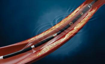 Imagen: El sistema de catéter de balón Lithoplasty (Fotografía cortesía de Shockwave Medical).
