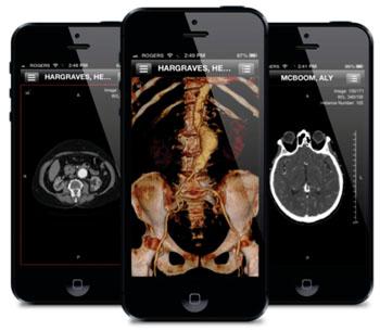 Imagen: Fotografías del software ResolutionMD en varios dispositivos (Fotografía cortesía de Calgary Scientific).