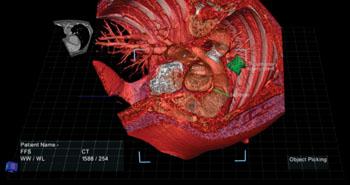 Imagen: Una composición de la anatomía de un paciente con el visualizador True3D (Fotografía cortesía de Echopixel).