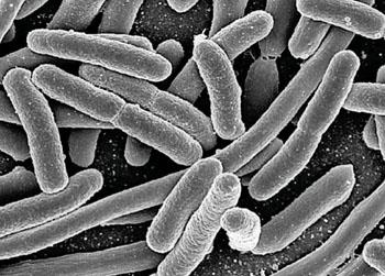 Imagen: Microfotografía electrónica de barrido (SEM) de Escherichia coli, obtenida de un cultivo (Fotografía cortesía del Instituto Nacional de Alergia y Enfermedades Infecciosas de los EE.UU.).