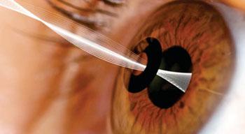 Imagen: La incrustación corneal KAMRA (Fotografía cortesía de AcuFocus).