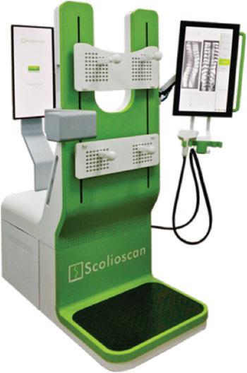 Imagen: El sistema de evaluación de la escoliosis por ecografía Scolioscan (Fotografía cortesía de la Universidad Politécnica de Hong Kong).