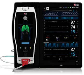 Imagen: La conectividad Raíz y la plataforma de monitorización de pacientes (Fotografía cortesía de Masimo).