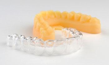 Imagen A: Ahora todos los alineadores transparentes para ortodoncia de ClearCorrect son producidos por impresión en 3-D con Impresoras Objet 3-D de Stratasys (Fotografía cortesía de Stratasys).