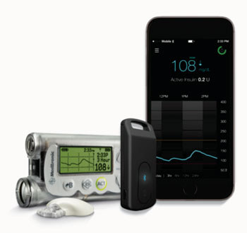 Imagen: El dispositivo MiniMed Connect (Fotografía cortesía de Medtronic).