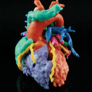 Imagen: Un corazón Materialise impreso en 3-D (Fotografía cortesía de Materialise).