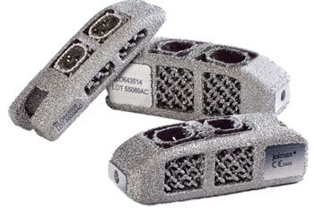 Imagen: El implante O-Cage para Fusión Intervertebral Lumbar Endoscópica (EndoLIF) (Fotografía cortesía de joimax).