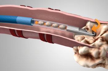 Imagen: El sistema GenCut para biopsia de núcleos en el pulmón (Fotografía cortesía de Medtronic).