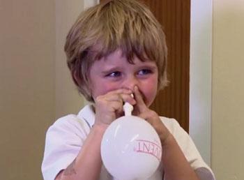 Imagen: Un niño con el globo nasal de inflado automático (Fotografía cortesía de la Universidad de Southampton).