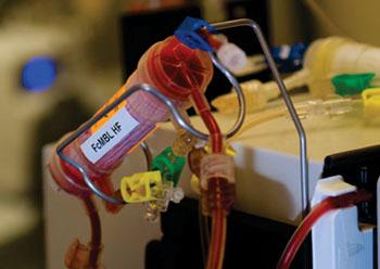 Imagen: El dispositivo para limpiar la sangre, FcMBL (Fotografía cortesía del Instituto Wyss de la Universidad de Harvard).