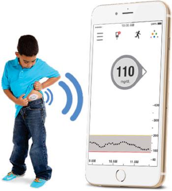 Imagen: El sistema Dexcom G5 Mobile para la MCG (Fotografía cortesía de Dexcom).