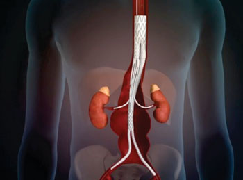 Imagen: El sistema para tratar TAAA con un stent desramificante (Fotografía cortesía de Sanford Health).