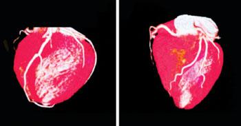 Imagen: Un examen en 3D del corazón de un niño que nació con defectos congénitos del corazón (Fotografía cortesía del Hospital para Niños de Phoenix).