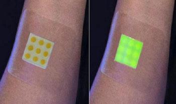 Imagen: El prototipo del apósito inteligente para heridas: no infectado (I), infectado (D) (Fotografía cortesía de la Universidad de Bath).